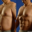 Surgery for a Six-Pack