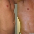Surgery for a Six-Pack 2